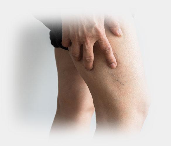 venenoperation oldenburger orthopadie